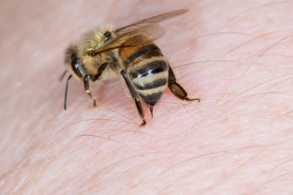 Bee and Wasp Stings > Symptoms   Treatment   Home remedies   When to call a doctor   Prevention