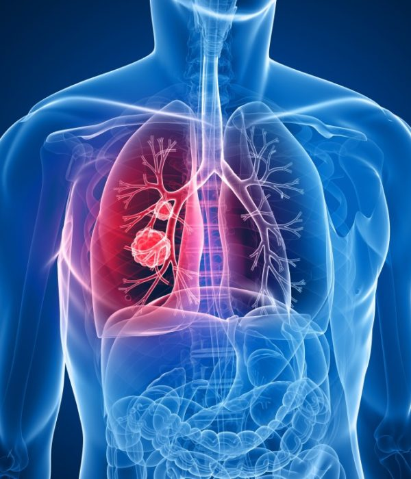Mesothelioma > What is mesothelioma? | Symptoms | Causes | Diagnosis | Treatment | Outlook