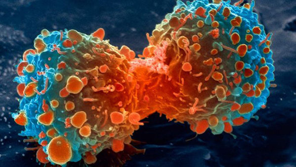 Cancer > What is cancer?   Causes   Treatments   Types   Outlook   Takeaway
