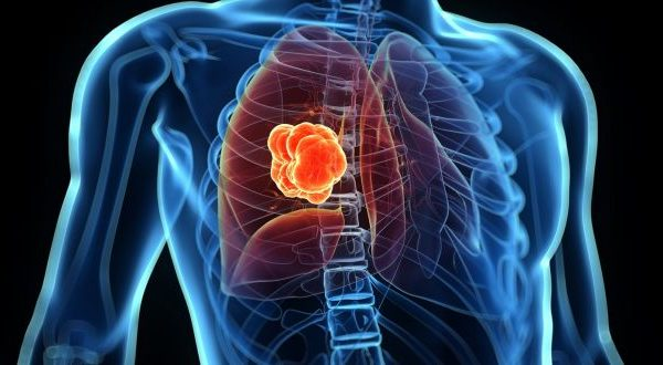 Lung cancer > What is lung cancer? | Symptoms | Diagnosis | Staging | Treatment | Outlook | Takeaway